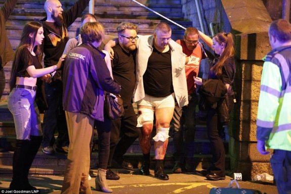 Alcuni feriti dopo l'attentato di Manchester